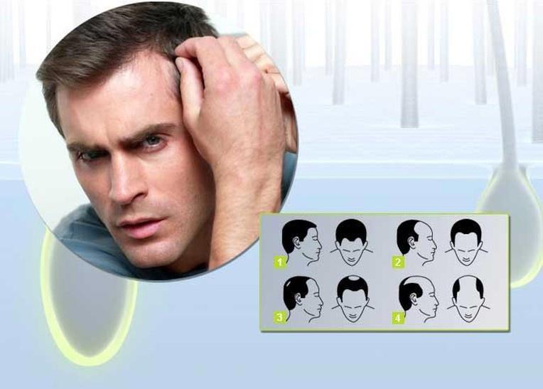 Эффективное средство от выпадения волос у мужчины должен подбирать специалист
