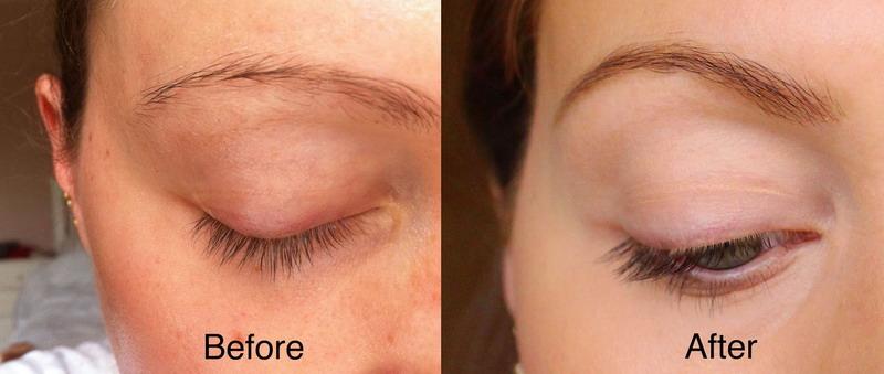 Брови до и после профессионального лечения