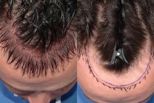 Трансплантация волос, планирование операции