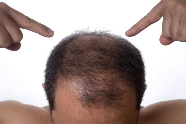 Если волосы прекращают расти, обратитесь к трихологу
