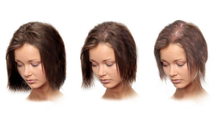 При андрогенном облысении количество волос может снижаться очень медленно