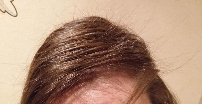 Даже если стресс не заставит волосы выпадать, их состояние существенно ухудшится