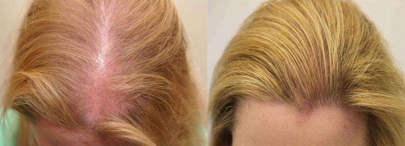 Состояние волос во многом зависит от ухода за ними