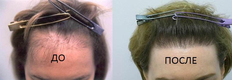 Пересадка волос – часто единственный способ избавления от андрогенной алопеции