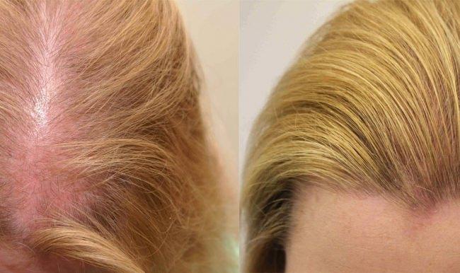 Истончение волос – проблема, с которой сталкиваются многие