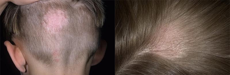 Стригущий лишай может вызвать выпадение волос у ребенка