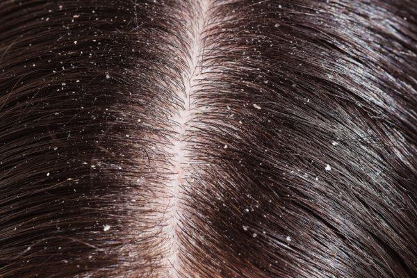 Себорея может вызвать выпадение волос и зуд