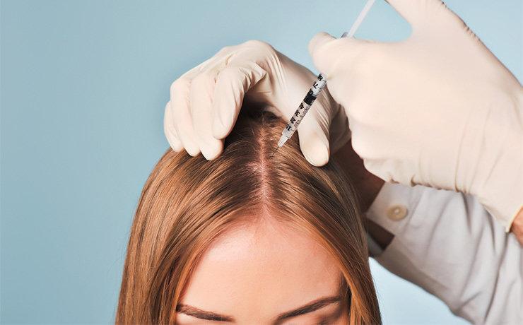 Мезотерапия – мощный способ восстановления здоровья волос