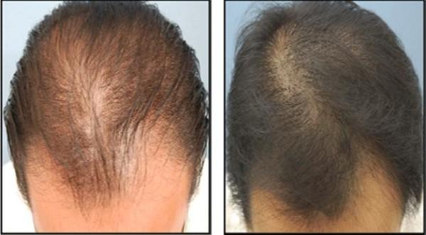 Волосы до и после применения мезотерапии