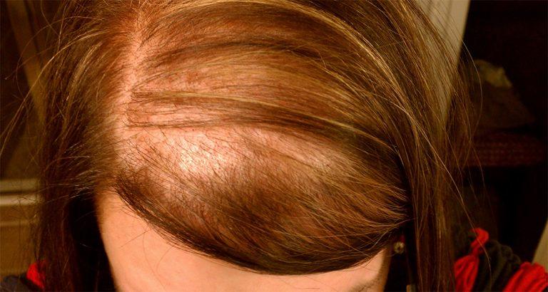 Телогеновая алопеция прорежает волосы с каждым днем