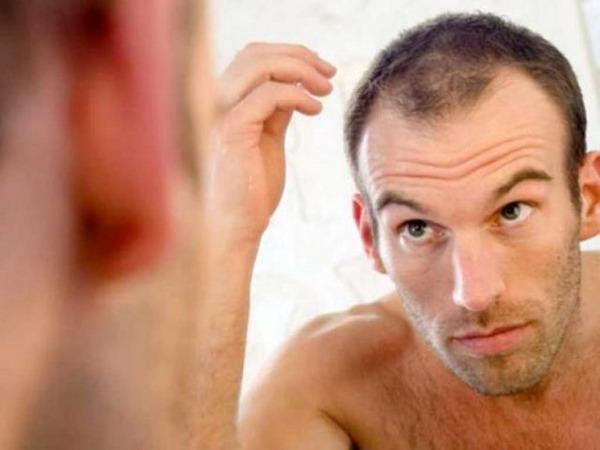 Облысение или появление залысин у мужчин – не такое редкое явление
