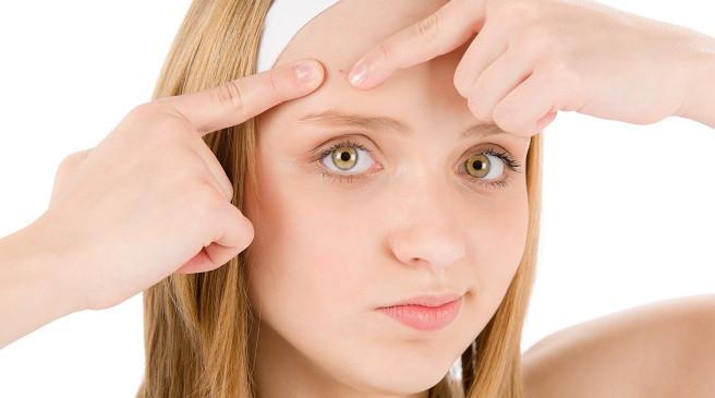 Гормональные изменения в подростковом возрасте могут вызвать поредение и выпадение волос у девочек