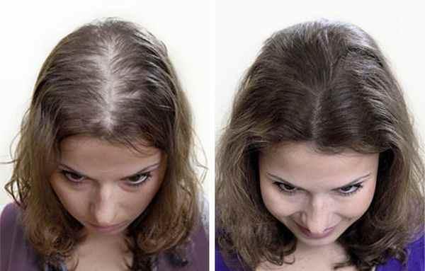 Медленно, но верно волосы обязательно восстановятся после этого типа облысения