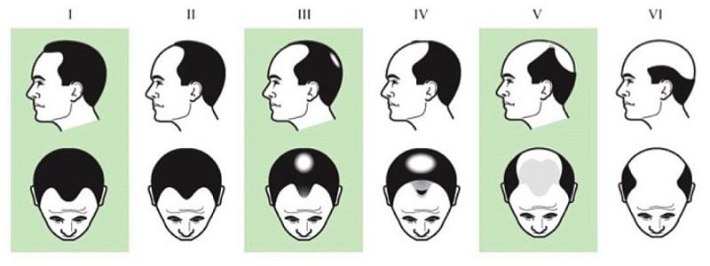 Так выглядят стадии облысения у мужчин по андрогенетическому принципу